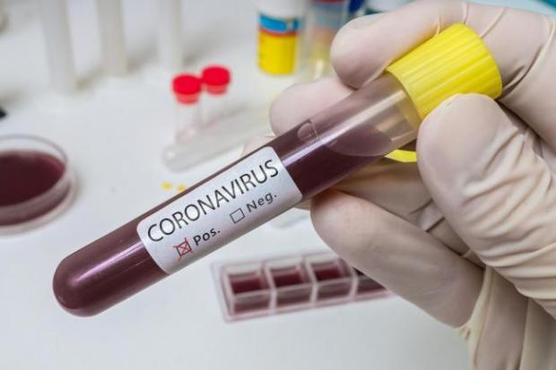 Coronavirus: Hywel Dda area sees 424 extra cases in a week